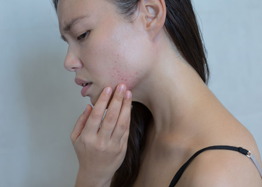 Acne and Stress | LipoLaser Fat